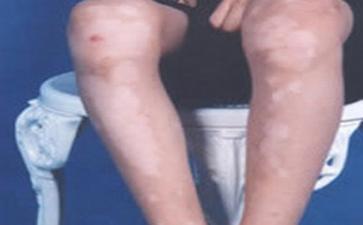 腿上有白斑怎么回事