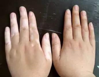 朱光斗名医工作室:白癜风早期的症状是怎样